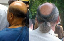 bald_with_ponytail - OpinionatedMale.com